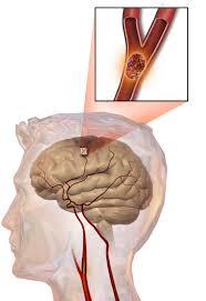 Stroke treatment using thrombectomy
