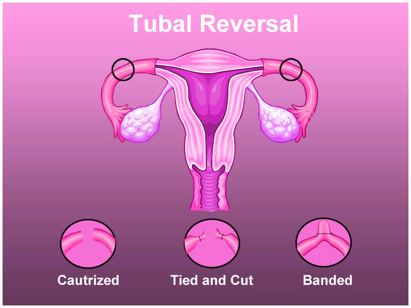 Find Your Top Tubal Ligation Surgeon in India with Indian ...