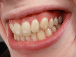 640px-Dental_fluorosis