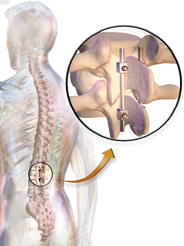 types of spinal fusion surgery - tlif vs plif - ground report